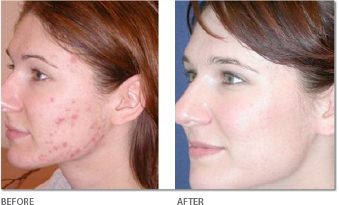 Acne Treatment - Before & After