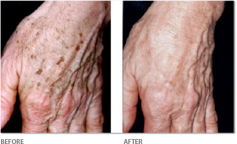 Fotofacial on Hands - Before & After
