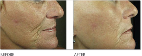 Resurfacing Eyes & Mouth - Before & After