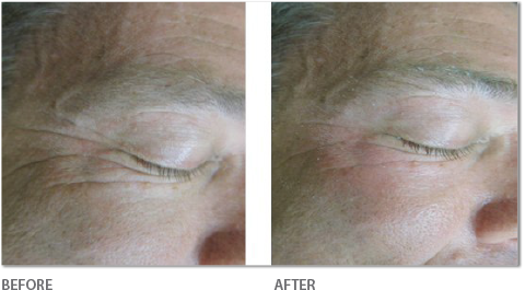 Skin Smoothing & Tightening - Before & After