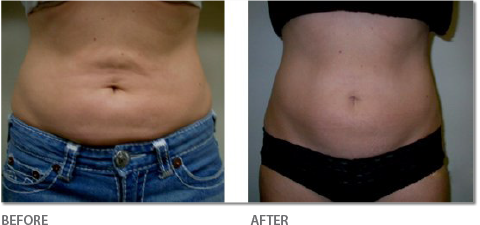 Body Conturing - Before & After
