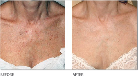 Fotofacial on Chest - Before & After