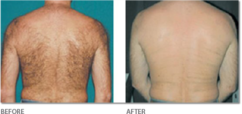 Hair Removal on Back - Before & After