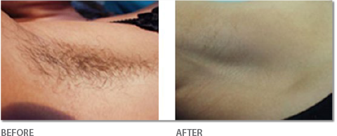 Hair Removal - Before & After