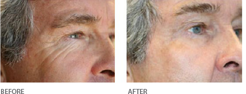 Resurfacing Eyes - Before & After