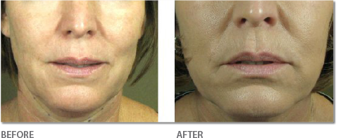 Skin - Before & After