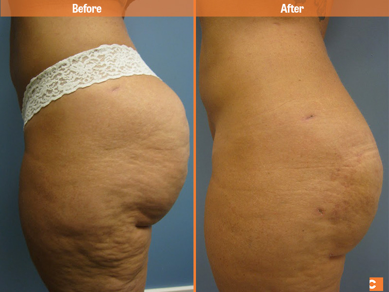 Before Amp After Liposuction Clearskin Institute