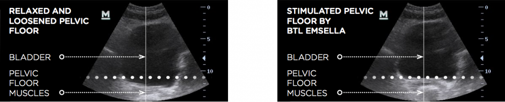 before and after btl emsella pelvic floor xrays