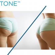 get rid of cellulite with emtone