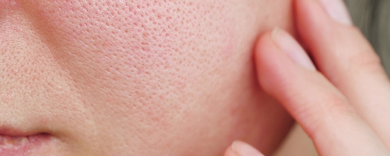 image of large pores